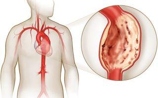 Разрыв аорты что это такое
