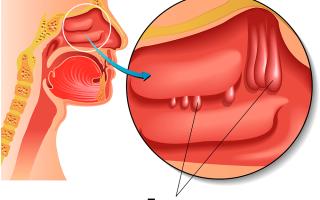 Лечение полипов в носовой полости