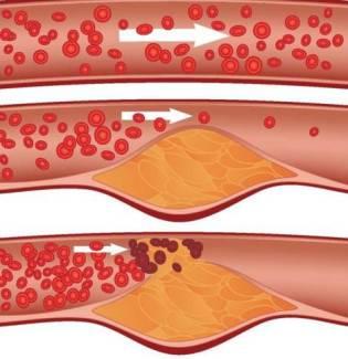 Атеросклероз что это такое - Сердце