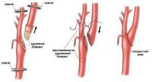 Атеросклероз сосудов головного мозга симптомы лечение - Сердце