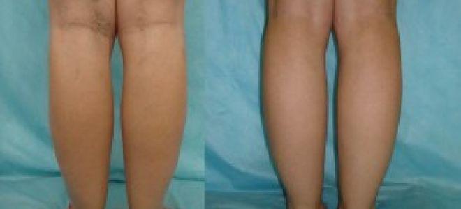 Почему на ногах сильно видны вены