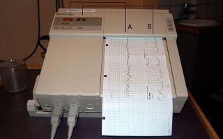 Можно ли узнать пол ребенка по сердцебиению