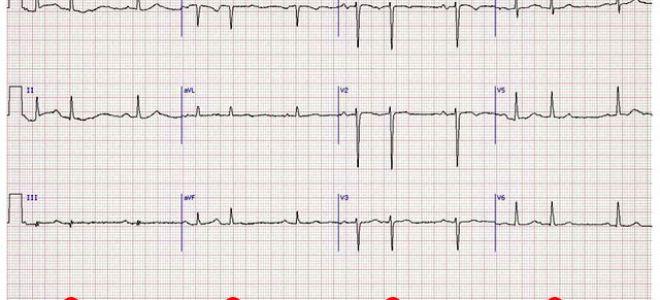 Что значит синусовый ритм сердца