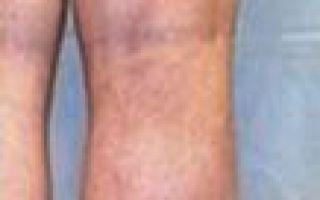 Варикозное расширение вен на ногах операция