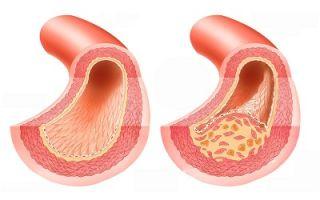Болезни сердечно сосудистой системы