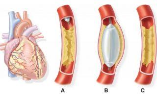 Атеросклеротическая болезнь сердца что это такое