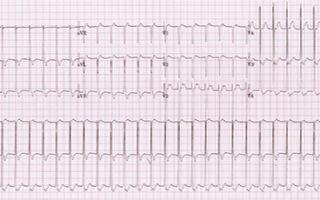 Учащенное сердцебиение и головокружение