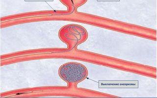Аневризма головного мозга симптомы последствия