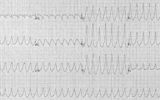 Усиленное сердцебиение причины