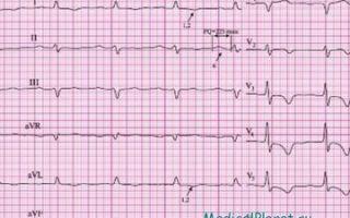 Инфаркт мелкоочаговый