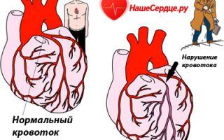 Стенокардия сердца что это такое