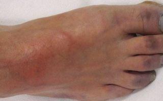 Облитерирующий эндартериит сосудов нижних конечностей лечение