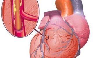 Сколько длится приступ стенокардии