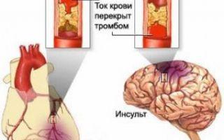 Инфаркт миокарда последствия