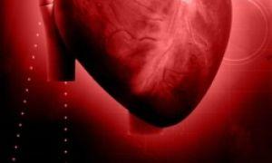 Брадикардия сердца что