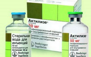 Транзиторная ишемическая атака лечение в домашних условиях