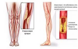 Лечение атеросклероза нижних конечностей медикаментозно