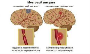 Заболевания сосудов головного мозга