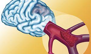 Инсульт головного мозга последствия