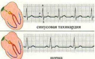 Что такое синусовая тахикардия