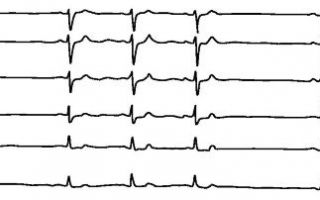 Синусоидальная аритмия сердца