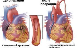 Аортокоронарное шунтирование что это такое