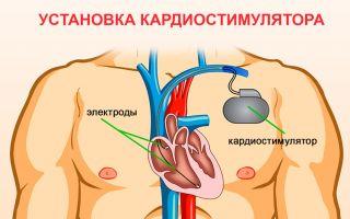 Препараты при брадикардии