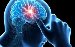 Ишемическая атака головного мозга