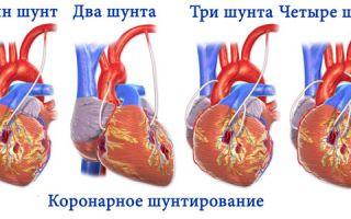 Что такое шунтирование сердца после инфаркта
