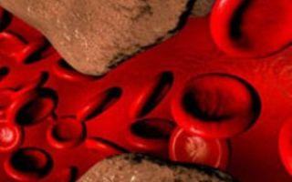 Уплотнение аорты сердца