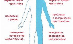 Сколько живут после ишемического инсульта