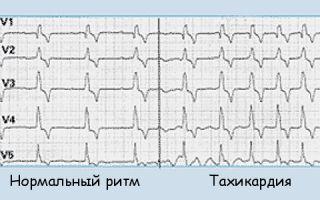 Синусная аритмия