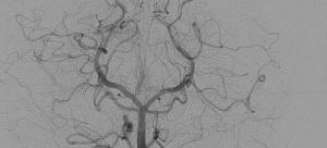 Ангиография сосудов головного мозга что это