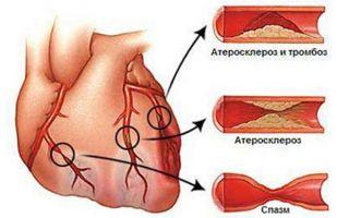 Атеросклероз сердца симптомы