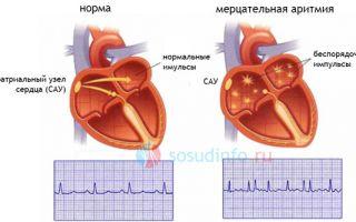 Нарушение сердечного ритма по типу экстрасистолии