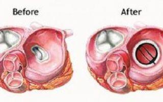 Замена клапана сердца