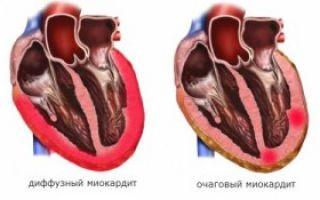 Миокардит симптомы и диагностика