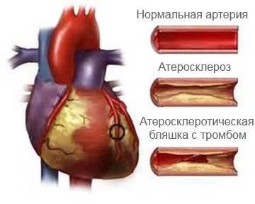 стентирование сердца