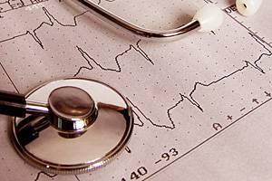 митрально аортальный порок сердца
