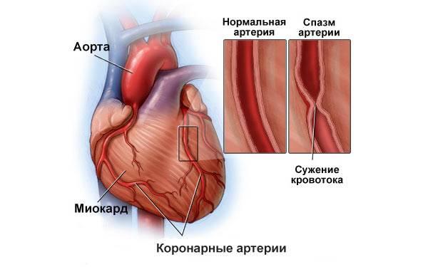 показания к назначению лекарств при боли в сердце
