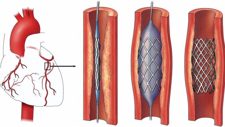 Стентирование сосудов сердца - характеристика