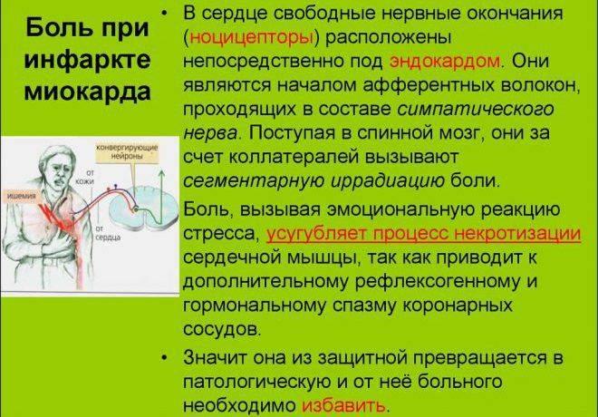 Локализация боли при инфаркте миокарда