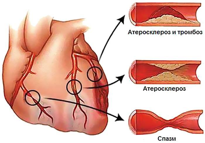 уход за больным после инфаркта