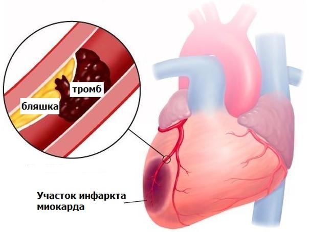 комплексная терапия инфаркта миокарда