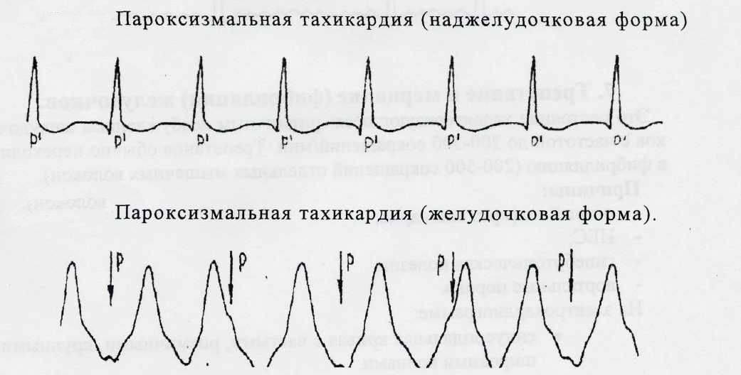 Что такое тахикардия сердца