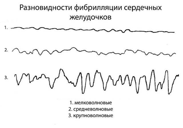 различные виды фибрилляций желудочков на ЭКГ