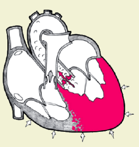 масса миокарда левого желудочка