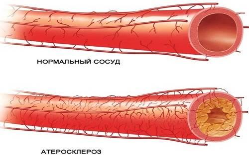 2 стадия атеросклероза