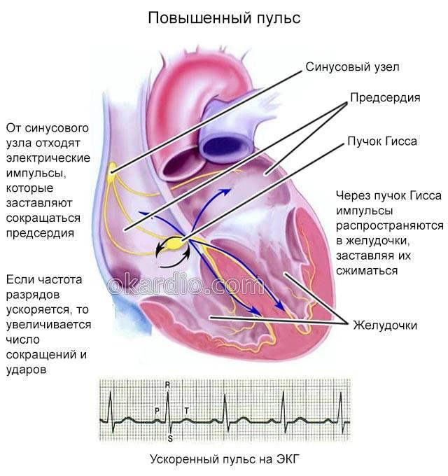 повышенный пульс