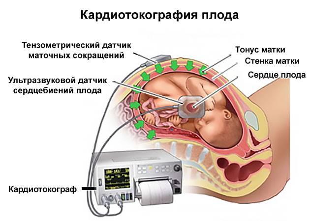 процедура кардиотокографии